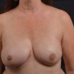 Immediate Breast Reconstruction - Nipple Sparring - Case #39 After