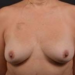 Immediate Breast Reconstruction - Nipple Sparring - Case #35 Before