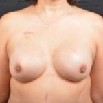 Immediate Breast Reconstruction - Nipple Sparring - Case #35 After