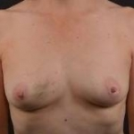 Immediate Breast Reconstruction - Nipple Sparring - Case #34 Before