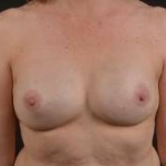 Immediate Breast Reconstruction - Nipple Sparring - Case #34 After
