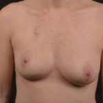 Immediate Breast Reconstruction - Nipple Sparring - Case #33 Before