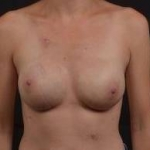 Immediate Breast Reconstruction - Nipple Sparring - Case #33 After