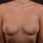 Immediate Breast Reconstruction - Nipple Sparring - Case #32 Before