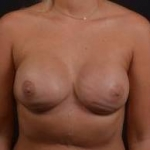 Immediate Breast Reconstruction - Nipple Sparring - Case #32 After