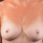 Immediate Breast Reconstruction - Nipple Sparring - Case #31 Before