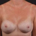 Immediate Breast Reconstruction - Nipple Sparring - Case #31 After