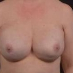 Immediate Breast Reconstruction - Nipple Sparring - Case #30 After