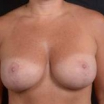 Mastopexy - Case #15 After