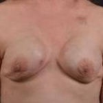 Immediate Breast Reconstruction - Nipple Sparring - Case #28 Before