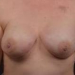 Immediate Breast Reconstruction - Nipple Sparring - Case #28 After