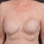 Breast Augmentation Mastopexy Revision - Case #55 Before