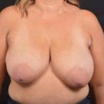 Breast Augmentation Mastopexy - Case #53 Before