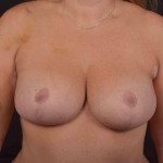 Breast Augmentation Mastopexy - Case #53 After