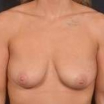 Breast Augmentation Mastopexy- Case #52 Before