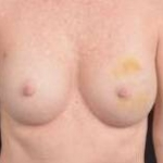 Immediate Breast Reconstruction - Nipple Sparring - Case #24 Before