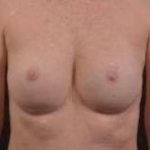 Immediate Breast Reconstruction - Nipple Sparring - Case #24 After