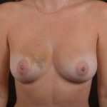 Immediate Breast Reconstruction - Nipple Sparring - Case #18 Before