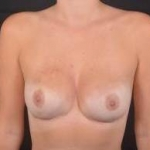 Immediate Breast Reconstruction - Nipple Sparring - Case #18 After