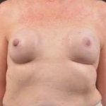 Immediate Breast Reconstruction - Nipple Sparring - Case #23 Before