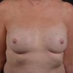 Immediate Breast Reconstruction - Nipple Sparring - Case #23 After