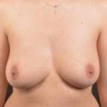 Immediate Breast Reconstruction - Nipple Sparring - Case #22 Before