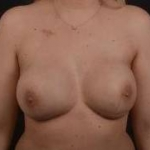 Immediate Breast Reconstruction - Nipple Sparring - Case #22 After