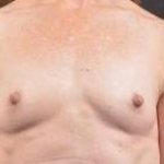 Immediate Breast Reconstruction - Nipple Sparring - Case #20 Before