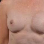 Immediate Breast Reconstruction - Nipple Sparring - Case #20 After