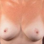 Immediate Breast Reconstruction - Nipple Sparring - Case #19 Before