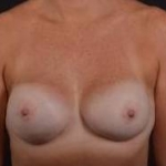 Immediate Breast Reconstruction - Nipple Sparring - Case #19 After