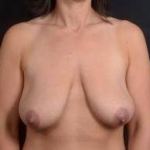 Immediate Breast Reconstruction - Nipple Sparring - Case #20A Before