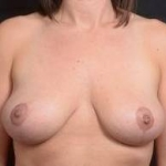 Immediate Breast Reconstruction - Nipple Sparring - Case #20A After