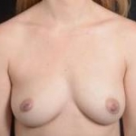 Immediate Breast Reconstruction - Case #17 Before