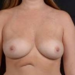 Immediate Breast Reconstruction - Nipple Sparring - Case #16 Before
