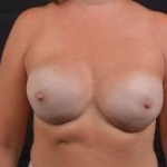Immediate Breast Reconstruction - Nipple Sparring - Case #16 After