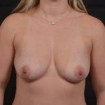 Breast Augmentation Mastopexy - Case #47 Before