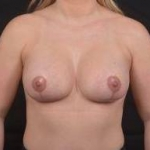 Breast Augmentation Mastopexy - Case #47 After