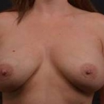 Breast Augmentation Mastopexy Revision - 43 Before