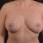 Breast Augmentation Mastopexy Revision - 43 After