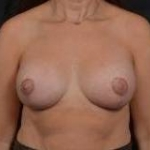Breast Augmentation Mastopexy- 41 After