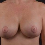 Breast Augmentation Mastopexy Revision - 40 After