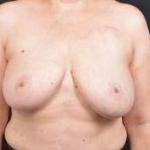 Immediate Breast Reconstruction - Skin Sparring - Case #24 Before