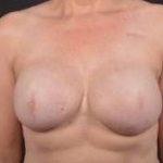 Immediate Breast Reconstruction - Skin Sparring - Case #24 After