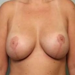 Mastopexy Augmentation - Case 39 After