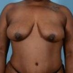 Breast Augmentation Mastopexy - 37 Before