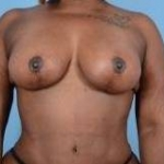Breast Augmentation Mastopexy - 37 After
