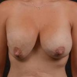 Breast Augmentation Mastopexy Revision - Case #33 Before