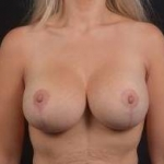 Breast Augmentation Mastopexy Revision - Case #33 After
