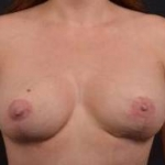Breast Augmentation Mastopexy - Case #32 After